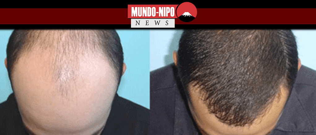 Antes e depois do procedimento de implante de cabelo