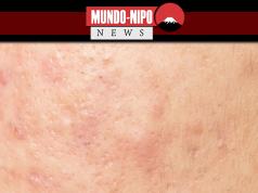 Pele adulta acneica
